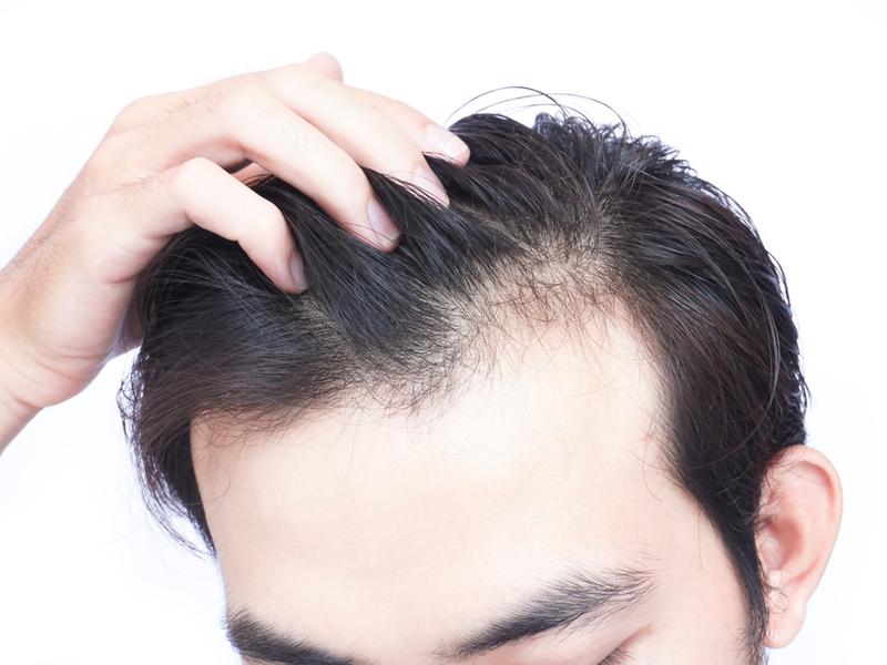 Κάλυψη της τριχόπτωσης & περιποίηση μαλλιών