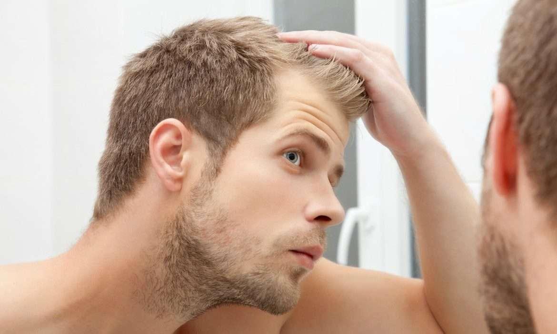Hair Building Fibers Review – KMax Vs Toppik, Caboki & Super Million Hair