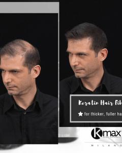 αποτελέσματα πριν - μετά την εφαρμογή του kmax concealing hair fibers στους άνδρες