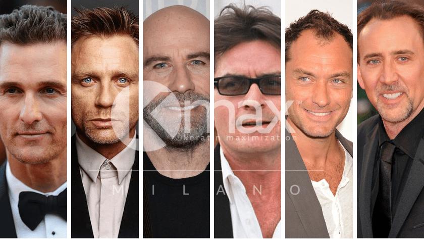 Πώς αντιμετωπίζουν οι διάσημοι την τριχόπτωση;