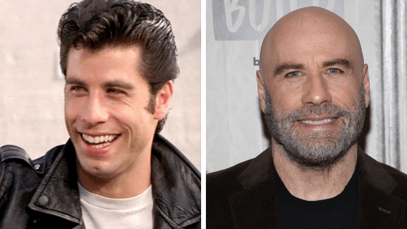 John Travolta,ένας διάσημος με τριχόπτωση